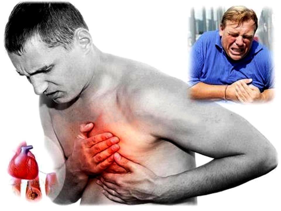 Síntomas y advertencias de ataque al corazón