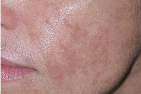 Sanar el acné sobre la persona