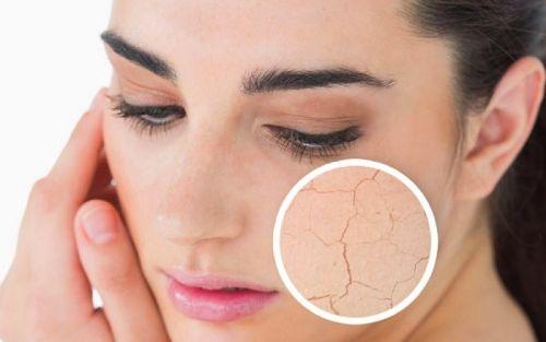 piel seca y escamosa siempre saludable